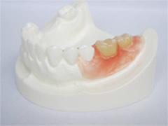 ノンメタルクラスプ義歯